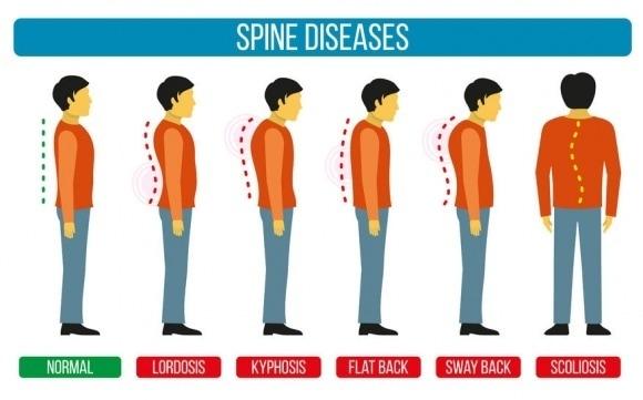 spine-diseases