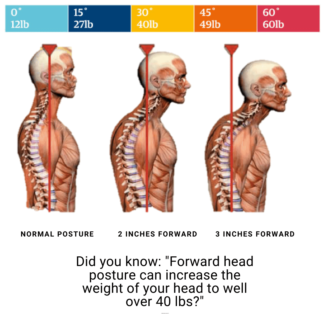 , Poor Posture | Scoliosis, Chiro Family Practice