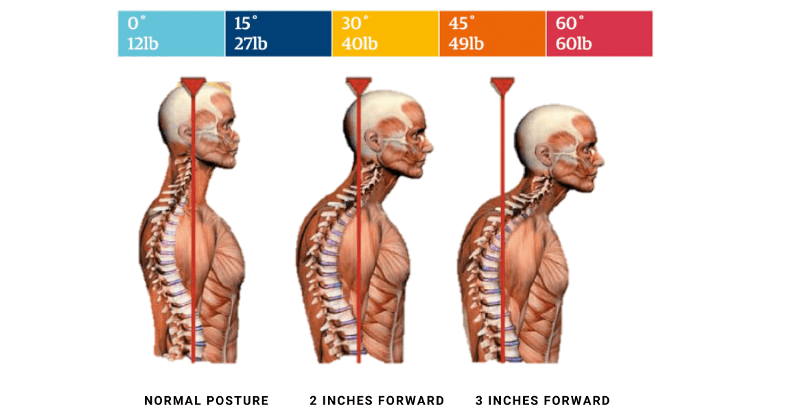 Your Posture Your Health