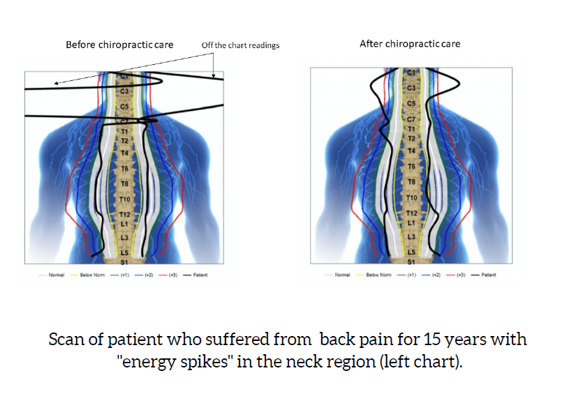 , Is back pain age-related?, Chiro Family Practice